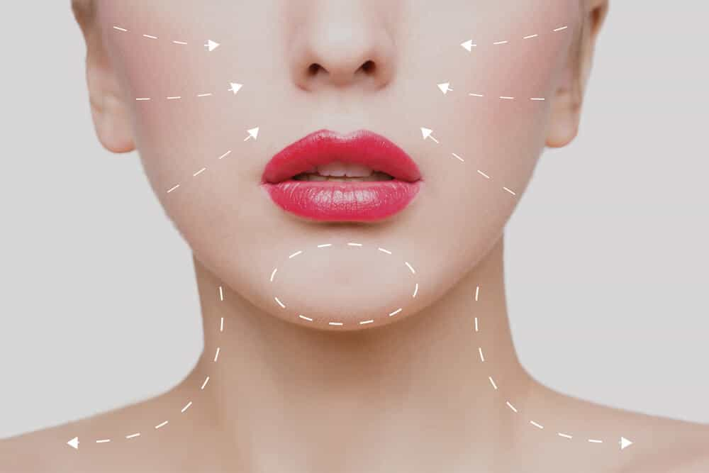 What Can Botox® Correct