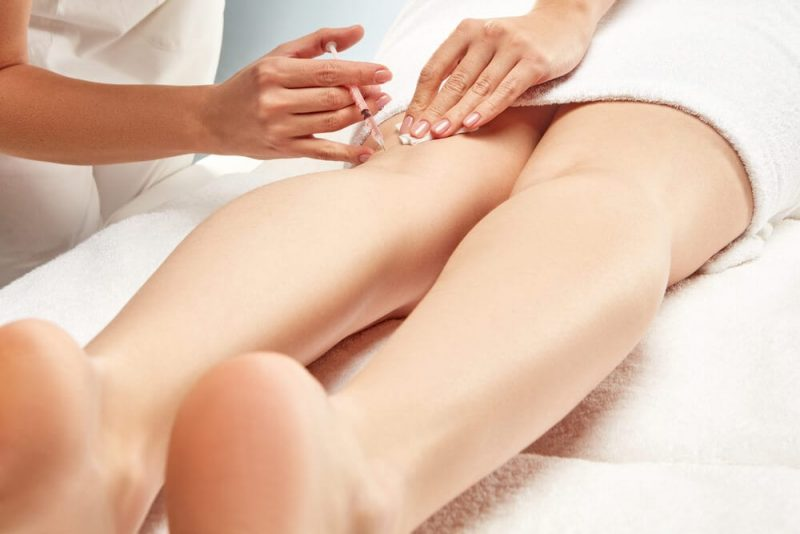 Is Sclerotherapy Safe