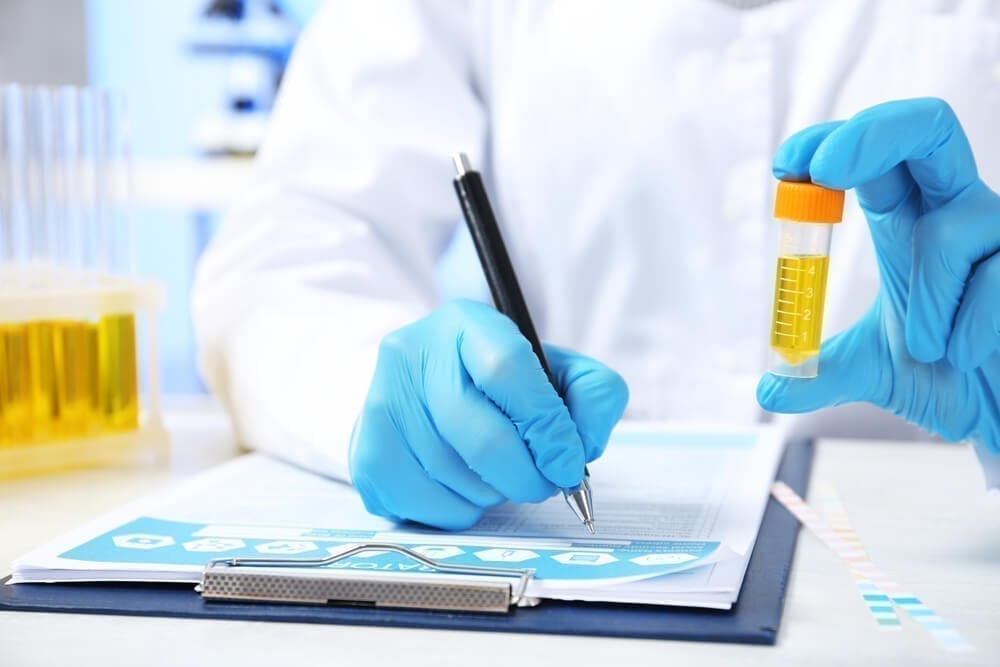 Laboratory Assistant With Urine Sample for Analysis Writing Medical Report at Table